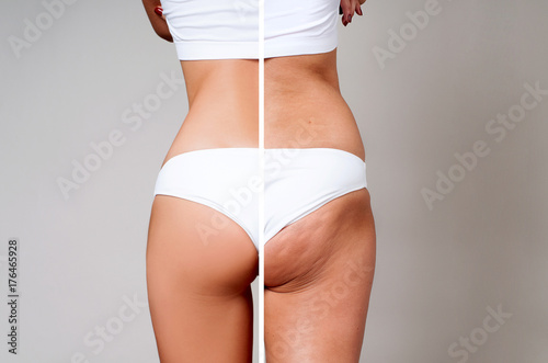 Female body before and after treatment. Plastic surgery.