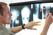 Specialist watching images of skull and spine at xray film viewer. Diagnosis,treatment planning - 176478707