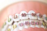 Fototapety Cosmetic dental metal brackets