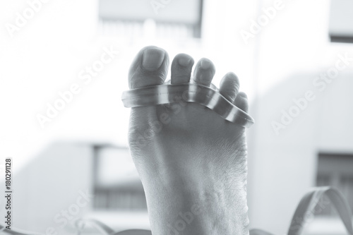 Papiers peints Pedicure Foot of woman with silicone prosthesis to separate the toes