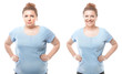 Leinwanddruck Bild - Young woman before and after weight loss on white background. Health care and diet concept