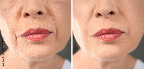 Senior woman before and after biorevitalization procedure, closeup © Africa Studio