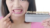 woman take tooth color palette - 183356594