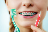Girl with teeth braces using interdental and traditional brush - 183384369