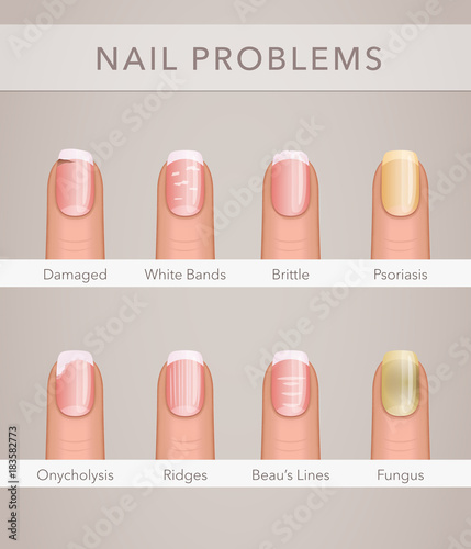 nail problems and illness, vector poster | Buy Photos | AP Images ...