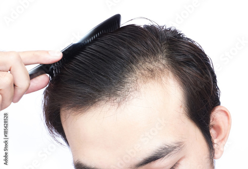 Young man serious hair loss problem for health care medical and shampoo product concept © mraoraor
