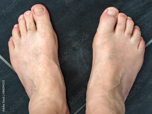 Foto op Aluminium Pedicure Naked feet of a man 60+