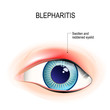 Eye of human. Blepharitis. inflammation of the eyelid