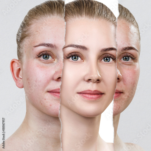 Compare of old photo with acne and new healthy skin. - 188167957