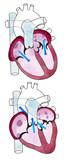 Cuore, ventricoli, anatomia umana, ventricoli cardiaci. Corpo umano, sezione