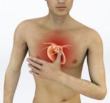 Attacco di cuore, dolore al petto, infarto. Aritmia, problemi cardiaci. Uomo con mano sul petto