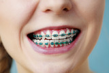 Closeup of woman teeth with braces, funny face - 190795196