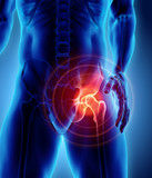 Hip painful skeleton x-ray, 3D illustration. - 191053709