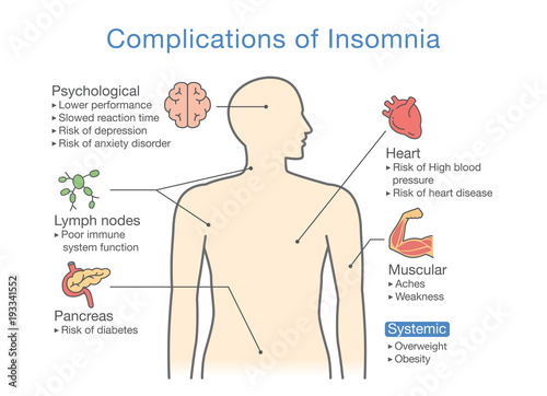 diagram of complications of insomnia  llustration about effects of health  problem