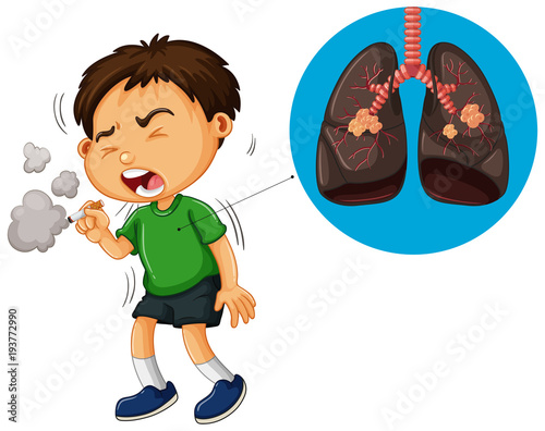 Deurstickers Kids Boy smoking cigarette and unhealthy lungs diagram