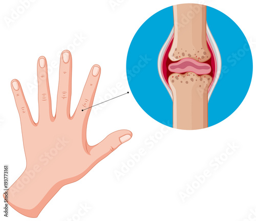 Deurstickers Kids Human hand and bad joints, arthritis