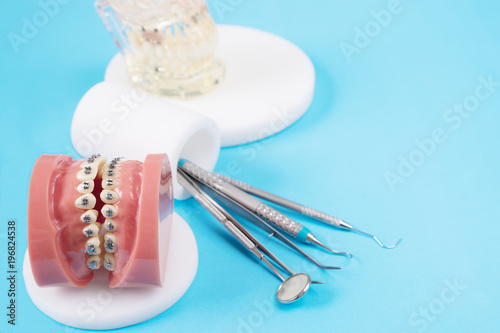 orthodontic model and dentist tool - demonstration teeth model of varities of orthodontic bracket or brace - 196824538