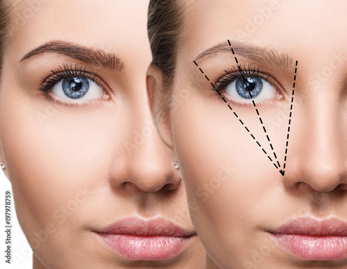 Leinwanddruck Bild Female face before and after eyebrows correction.