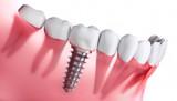 Zahnimplantat im Unterkiefer - 198615306