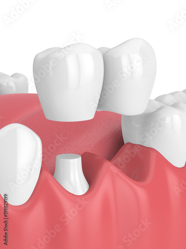 3d render of jaw with dental cantilever bridge - 198829199