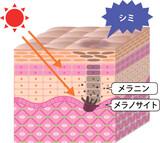肌 断面図 日焼け シミ - 198998165