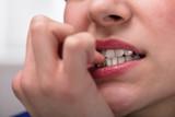 Businesswoman Biting Her Fingernail - 199513951