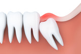 Toothache in wisdom tooth - 201699703