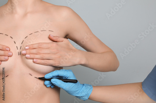 Leinwandbild Motiv Doctor drawing marks on female breast for cosmetic surgery operation against color background