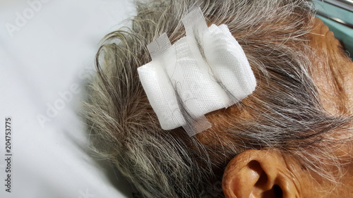 close-up old woman head injury, head trauma with stitch and gauze