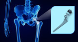 Hip replacement implant installed in the pelvis bone. X-ray view. Medically accurate 3D illustration - 206036382