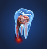 Damaged teeth xray view. Medically accurate tooth 3D illustration - 206037300
