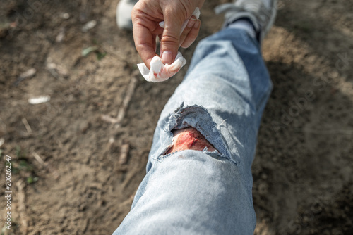 woman healing bloody wound on mans knee. close up