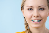 Woman showing her teeth with braces - 207693949
