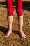 Somriga barnben med skrapsår och blåmärken - 208437722