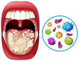 A Human Mouth Virus Infection - 208694746