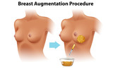 A Set of Female Breast Augmentation - 208694768