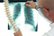 specialist  with model of sine in hand,watching image of chest at x-ray film viewer - 208781935