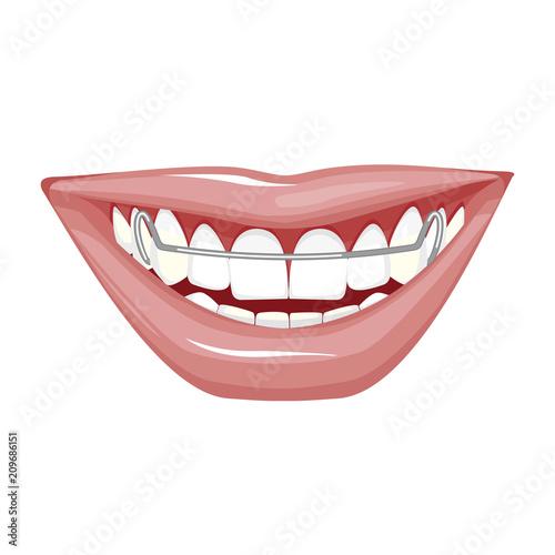 Dentist, orthodontist. Vector illustration. Braces on teeth. open mouth. White background.