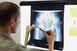 Professional with femur bone model watching image of hip - joint,  pelvis at x-ray film viewer. Diagnosis,treatment planning - 209761349