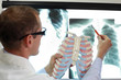 doctor with ribs and lungs model watching image of chest at x-ray film viewer - 209761389