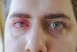 Two red eyes of man is watching to the camera. One right eye eyelid abscess - 210403756