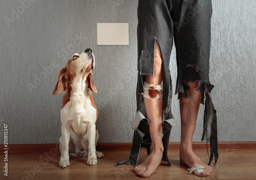 Leinwanddruck Bild  Beagle and his owner in torn pants and bitten feet.