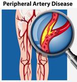 Human with Peripheral Artery Disease - 213089524