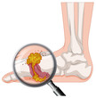 Gout In Human Foot