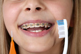 Young girl with braces and toothbrushes - 213928707