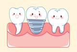 cute cartoon implant tooth - 215927393