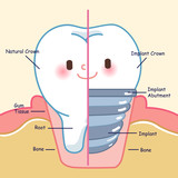 teeth with implant concept - 215927397