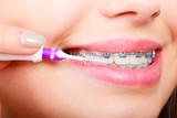 Woman brushing teeth with braces using brush - 218286165