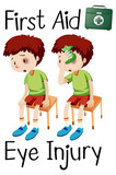 boy first aid eye injury - 219880763