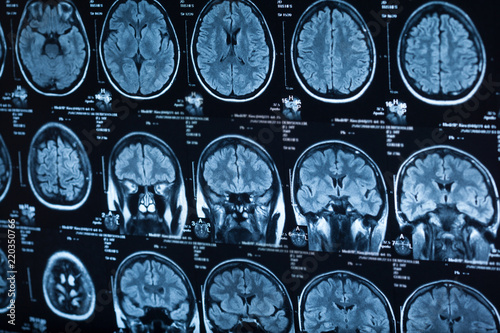 The X-ray of the human brain - 220350766